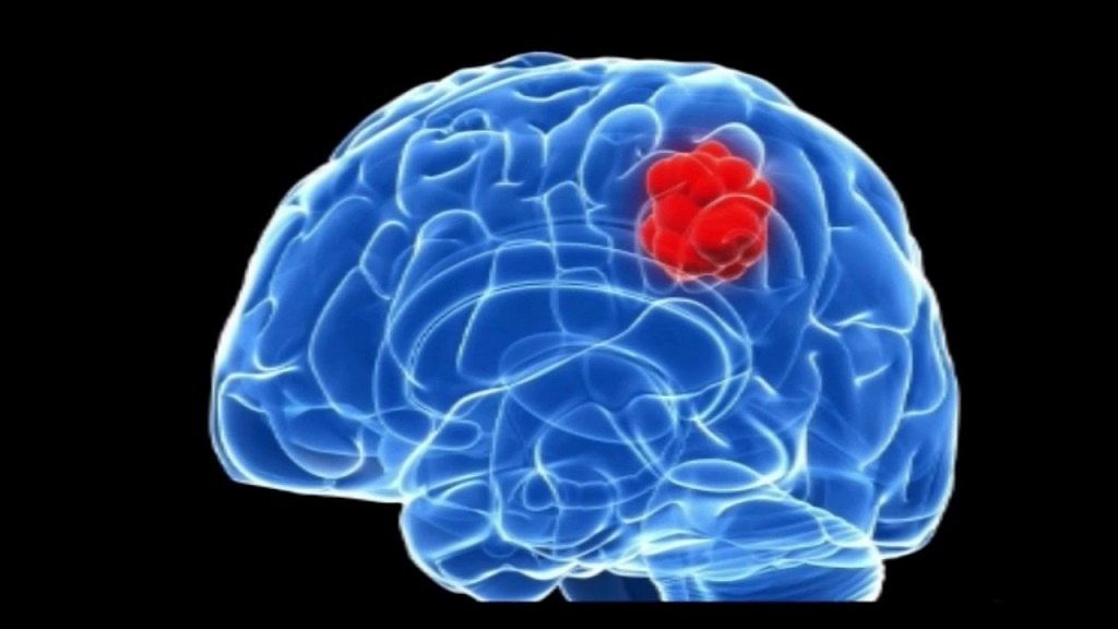 Brain Tumor- All You Want to Know about It - PrzeSpider