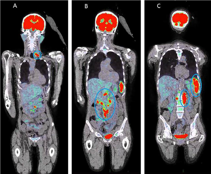 PET CT scans