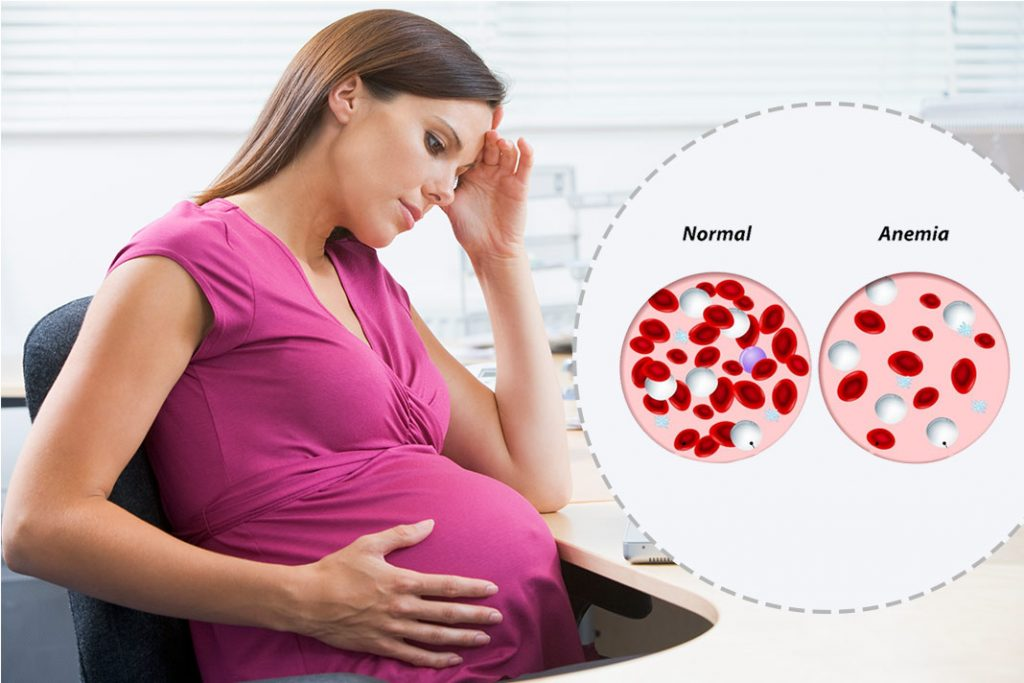 Suffers from Anaemia During Pregnancy