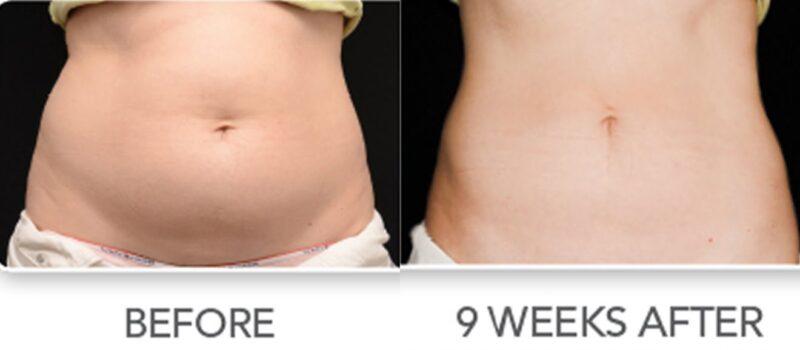 nonsurgical liposuction procedure