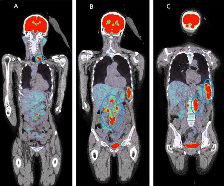 PET CT scans